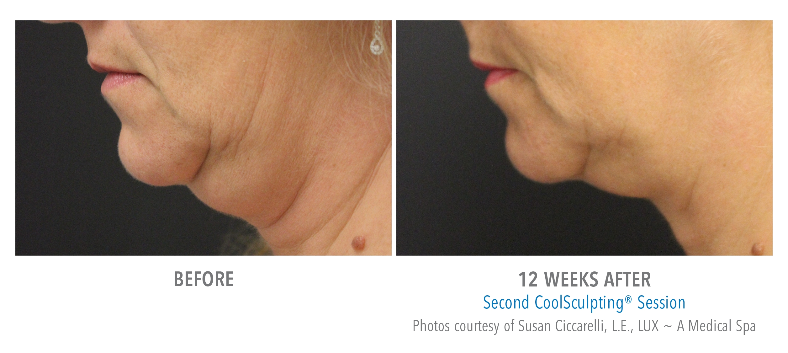 CoolSculpting Chin 2 treatments.