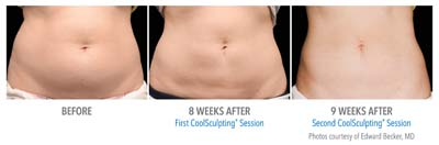 B&A-Becker-AB-3Set-17wk-HiRes
